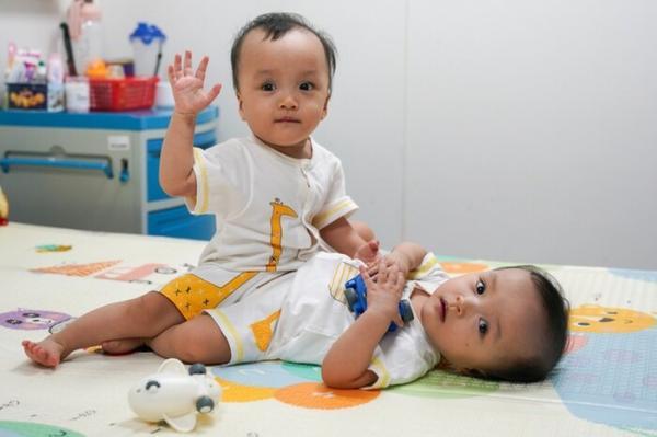 Cặp song sinh dính liền Trúc Nhi - Diệu Nhi tròn 2 tuổi: Đã có thể chạy loanh quanh nhà, nói bi bô líu lo